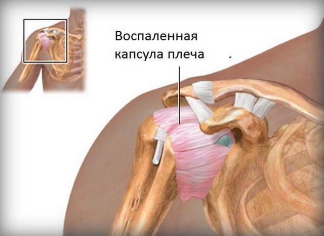 szantálfa ízületi kezelés